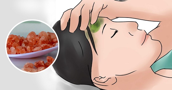How To Stop A Migraine In Seconds With One 100% Natural Ingredient 1